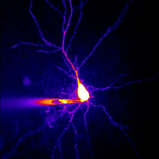 Researchers identify a new neural mechanism in epilepsy.
