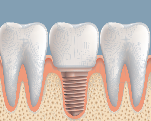 Dental Implant Success