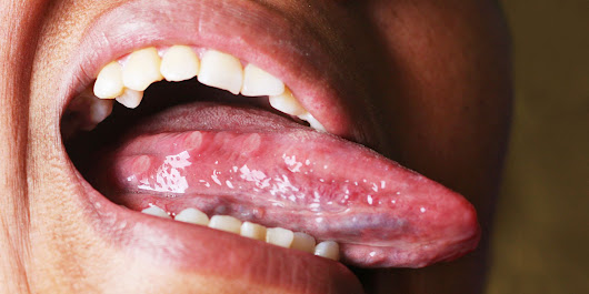 What Your Tongue Could Tell You About Your Sleeping Habits