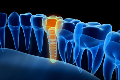 Signs That You Should Get a Dental Implant