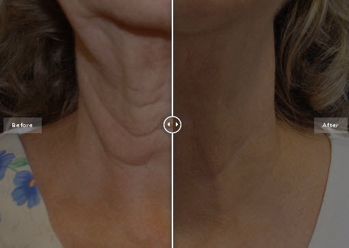 Exilis Before And After Images