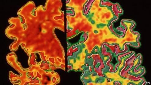 ο-εγκέφαλος-μπορεί-να-αντισταθεί-στα-πρώιμα-σημάδια-της-Νόσου-Αλτσχάιμερ