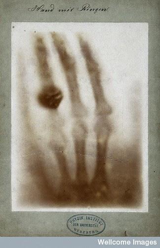 Bertha Rhöntgen's hand