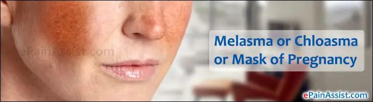Melasma or Chloasma or Mask of Pregnancy|Causes|Location ...