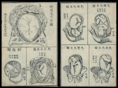 schematics of baby in utero and placenta