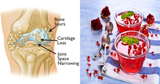Make This Pomegranate Gelatin Treat To Get Rid Of Joint, Back And Knee Pain