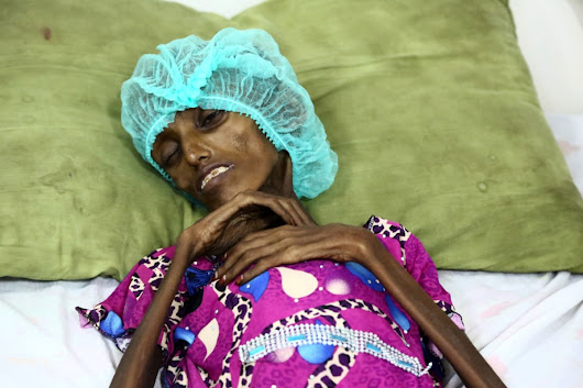 Malnutrition Strikes Yemenis Trapped by Civil War