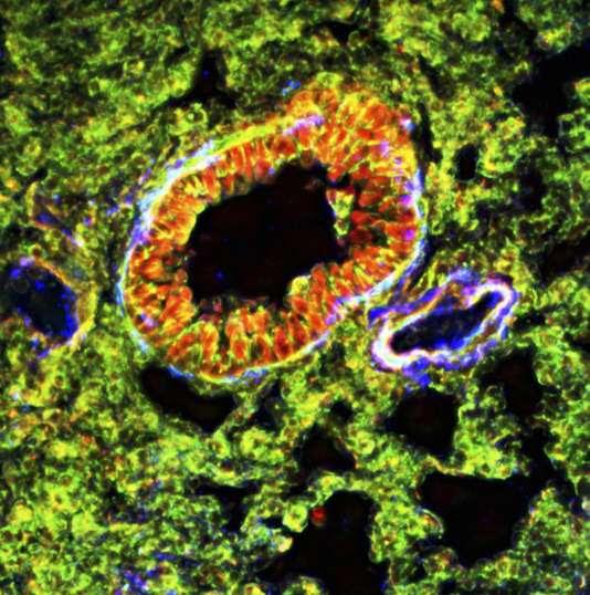Dans cette section d'une bronchiole pulmonaire, les protéines cellulaires sont teintées en rouge (actine globulaire), en vert (active filamenteuse) et en bleu (actine de muscle lisse).