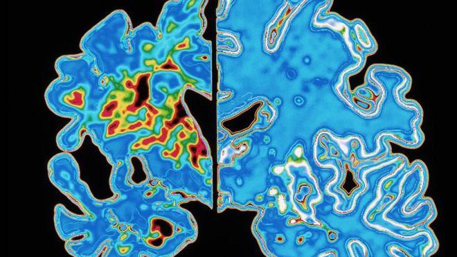 'Transmittable Alzheimer's' concept raised