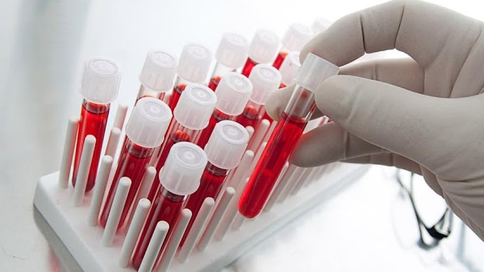 A Scientific breakthrough to fight cancer. A blood test reveals 50 species before its symptoms.