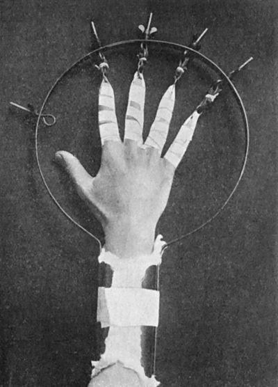 midnight-gallery:  Extension apparatus for Oblique Fracture of Metacarpals.