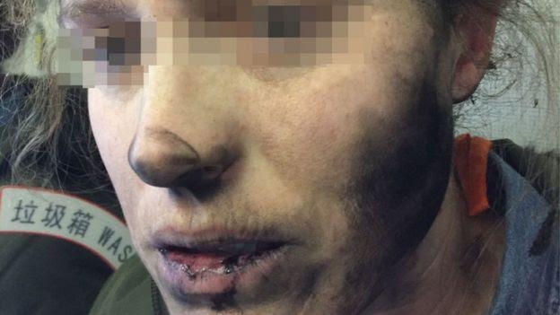 Mulher com boca, nariz e bochecha manchados de negro