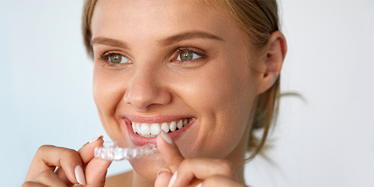 Straight Talk: All You Need to Know About Invisalign