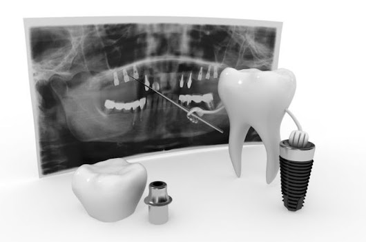 Contemporary Periodontics and Implant Surgery