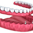 Implant Dentistry Brooklyn NY 11204, Overdentures Dentist, Dental Implants