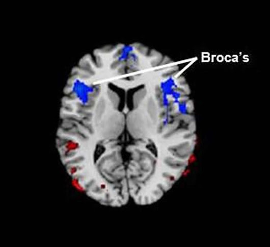 Stuttering Linked to Reduced Blood Flow in Brain Area Associated With Language
