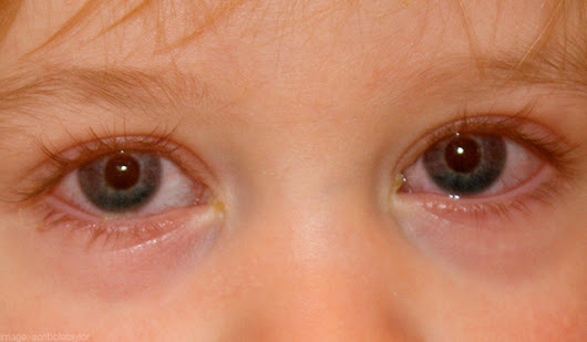 Pinkeye - Quinte Pediatrics and Adolescent Medicine