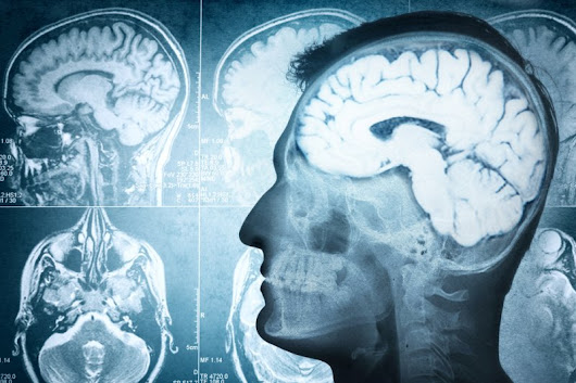 Study finds head injuries can alter genes in brain