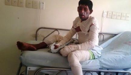 Homem é queimado vivo durante bebedeira na zona rural de Tarauacá