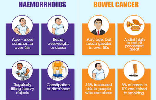 How to spot the difference between haemorrhoids and bowel cancer