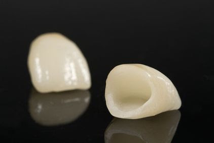 Dental Crowns - Montreal, Quebec - Dr. Roni S. Berbari