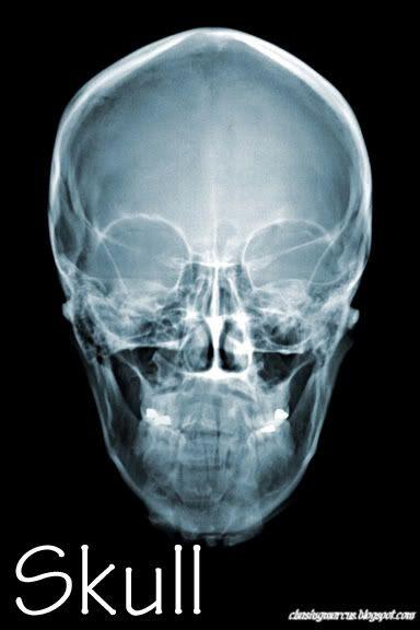 human body: printable x-ray cards | theme: human body | Pinterest ...