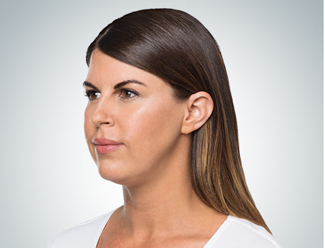 Kybella: Your solution for the appearance of a double chin