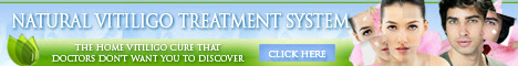natural vitiligo treatment system