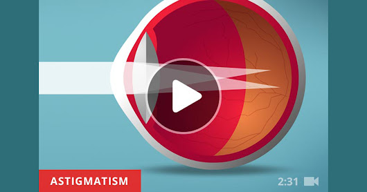 What Exactly Is Astigmatism?