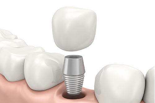 Are Dental Implants the Right Solution for Your Smile?