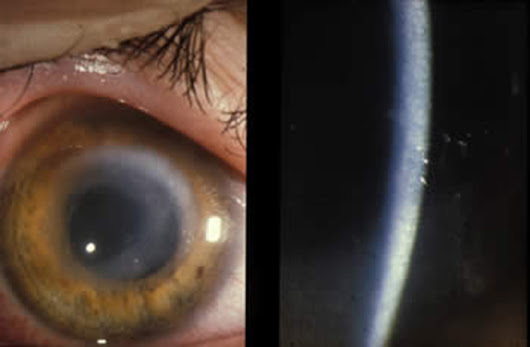 Dirty contacts linked to 1M eye infections per year | KSL.com