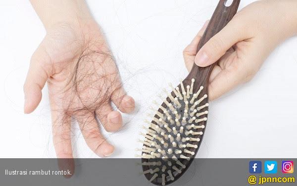 Rambut Rontok Berhubungan dengan Kanker Prostat? - JPNN.COM