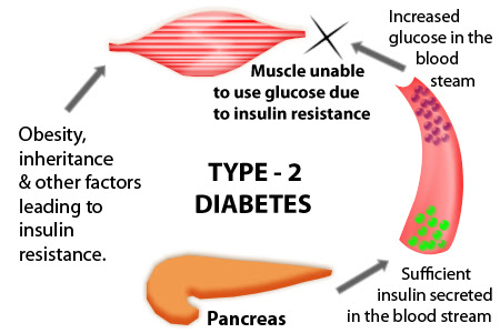 Diabetes Type 2 Causes, Symptoms And Treatment