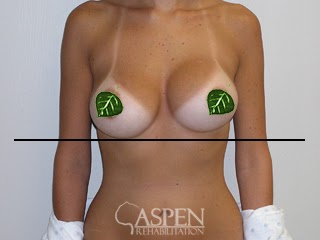 Physical Therapy For Capsular Contracture