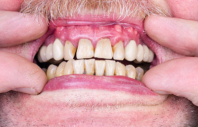 Signs & Symptoms of Gum Disease - Leading Puyallup Dentist