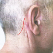 6 mths post op,is the face lift revision suggestion (in red line photos) the correct way to fix the folds behind the ear?(photo) Doctor Answers, Tips