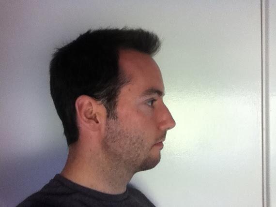 Small chin, weak jawstyle/neckline advice  Beard Board