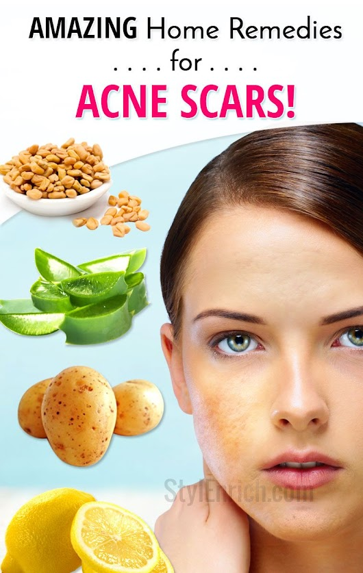 Home Remedies for Acne Scars : Acne Scars Treatments