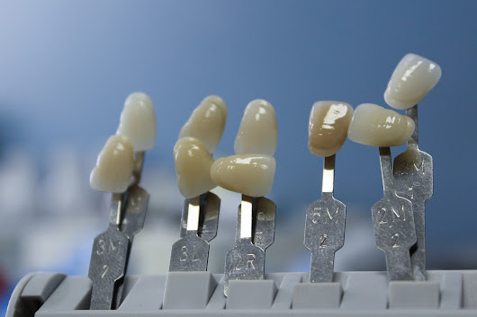 Dental Implants: Different Kinds for Different Needs