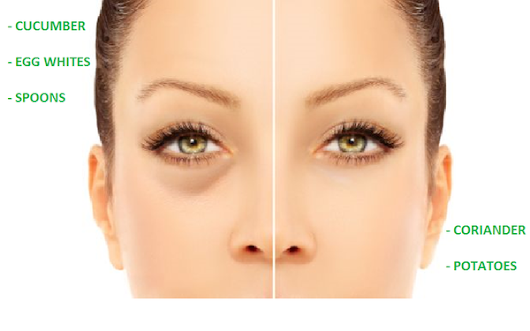 HOME REMEDIES TO REMOVE PUFFINESS  UNDER THE EYES
