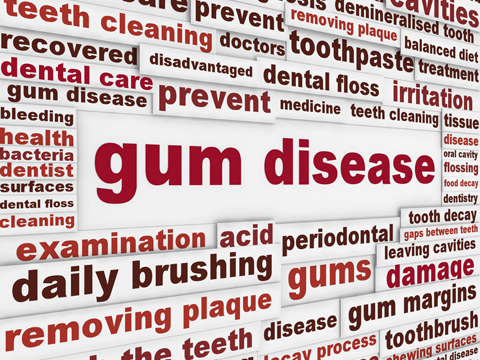 Gum Disease Myths - American Dental Association