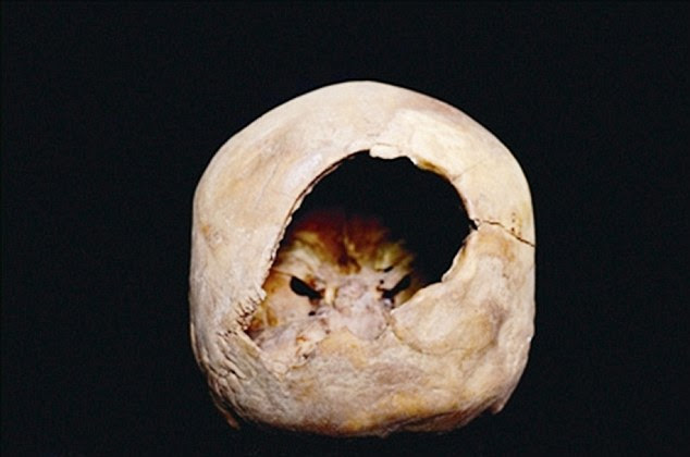 The perforated skull (pictured) was discovered as part of a mummified body of a woman in the 'Little River' Xiaohe tomb complex. Experts said that the hole, measuring around 2 inches (50mm) in diameter, was most likely an early form of craniotomy - a procedure that involves removing bone to get access to the brain