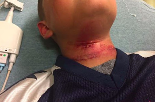 8-year-old biracial boy's family claims a group of white teens attempted to hang him