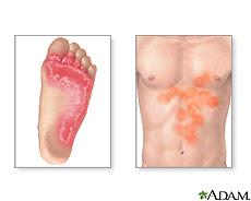 Ilustración de infecciones por tiña
