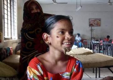 Bangladesh identifica a la primera 'mujer árbol'