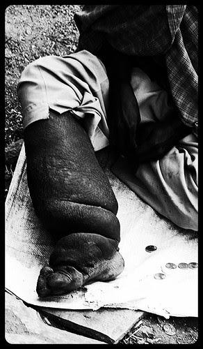 The Beggars Leg.. Helps Him Beg by firoze shakir photographerno1