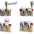 Dental Crowns - New York, NY - Long Island, NY - Brooklyn, NYC