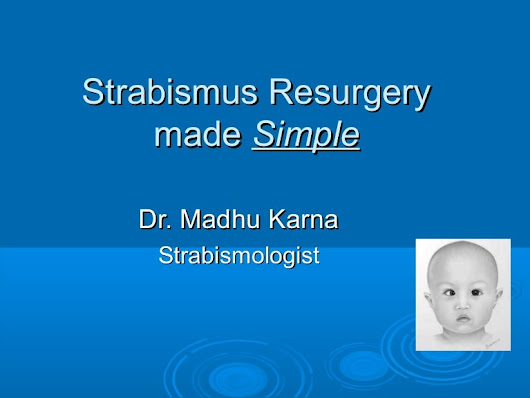 Strabismus surgery made simple: Dr. Madhu Karna Strabismologist
