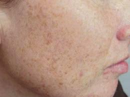 Sun Spots and Pigmentation | Audubon Dermatology