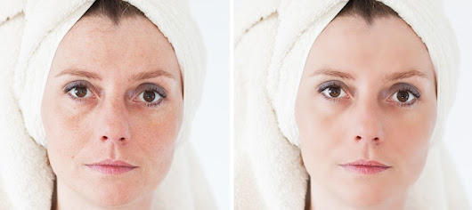Acne Information And Acne Scar Information